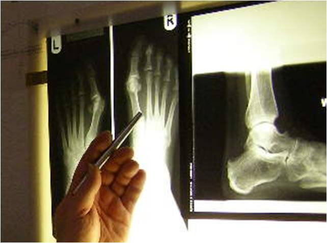 Foot X-Ray David Cozens