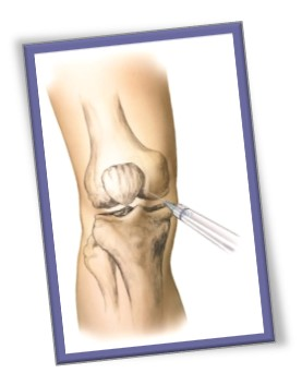 Knee Injection